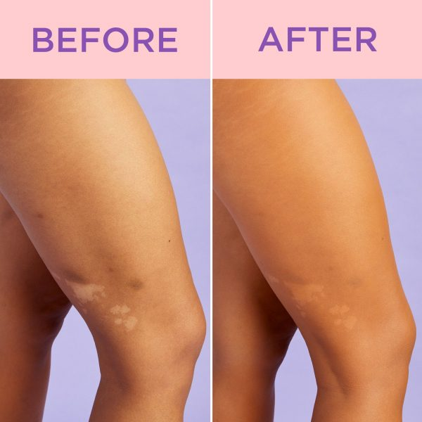 TARTE Shape Tape Waterproof Body Makeup before after