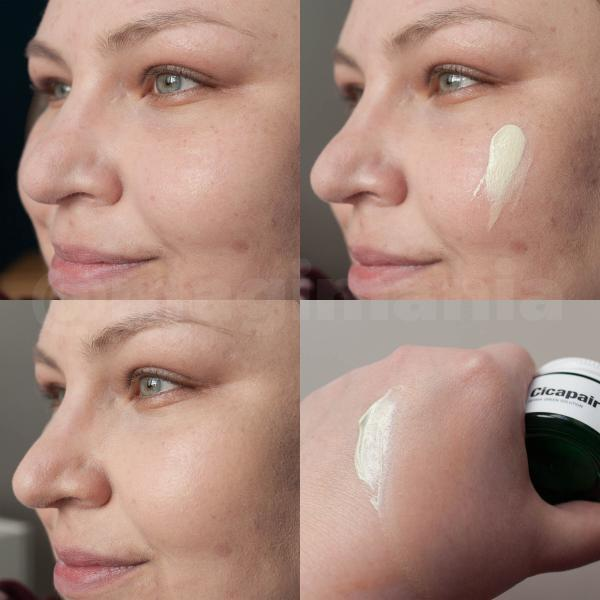 DR JART Cicapair Tiger Grass Color Correcting Treatment Skin Result Difference Test Review Expierence Erfahrungen vorher nachher before after