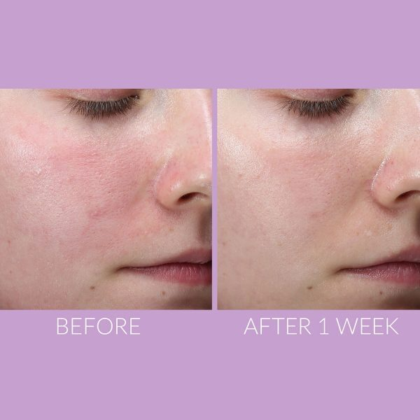 KATE SOMERVILLE DeliKate Recovery Serum Ergebnis Erfahrungen vorher nachher Effekt Rötungen Poren