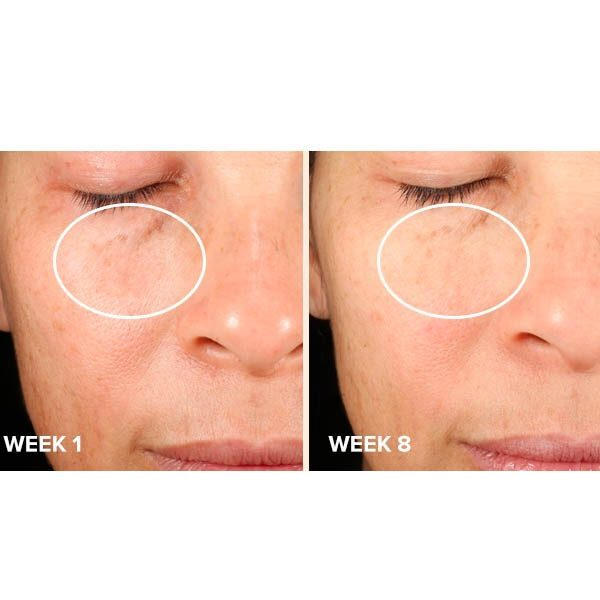 PAULA'S CHOICE Clinical Discoloration Repair Serum Melasma Hyperpigmentation before after results
